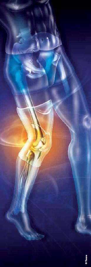 Ortoze za kolena